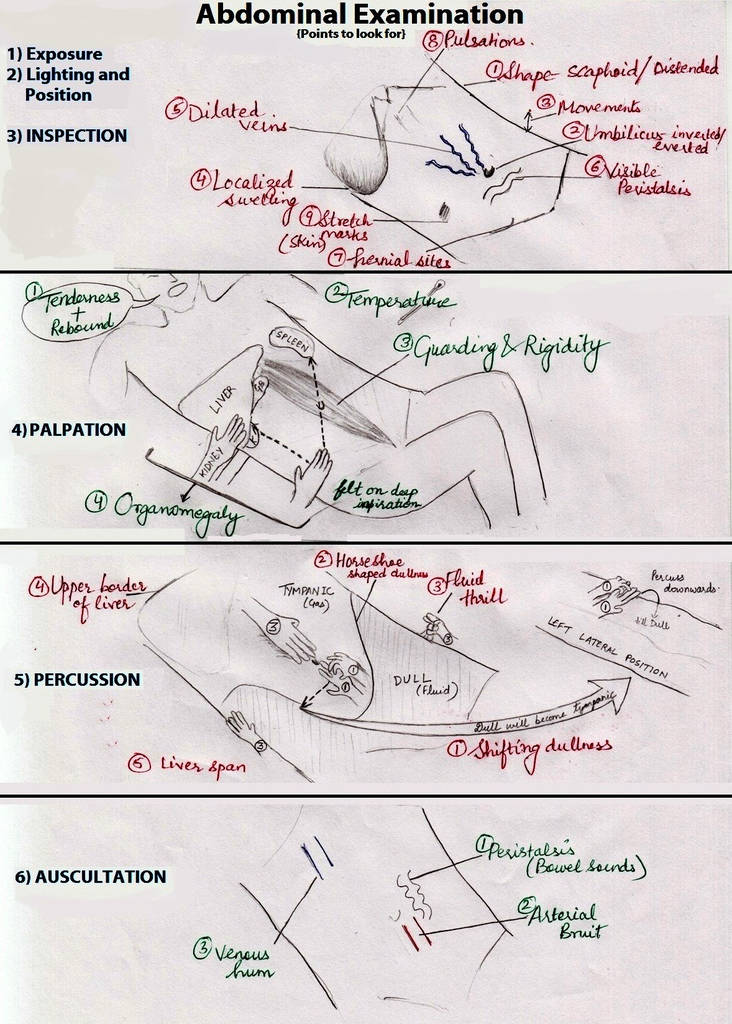 Abdominal examination illustration