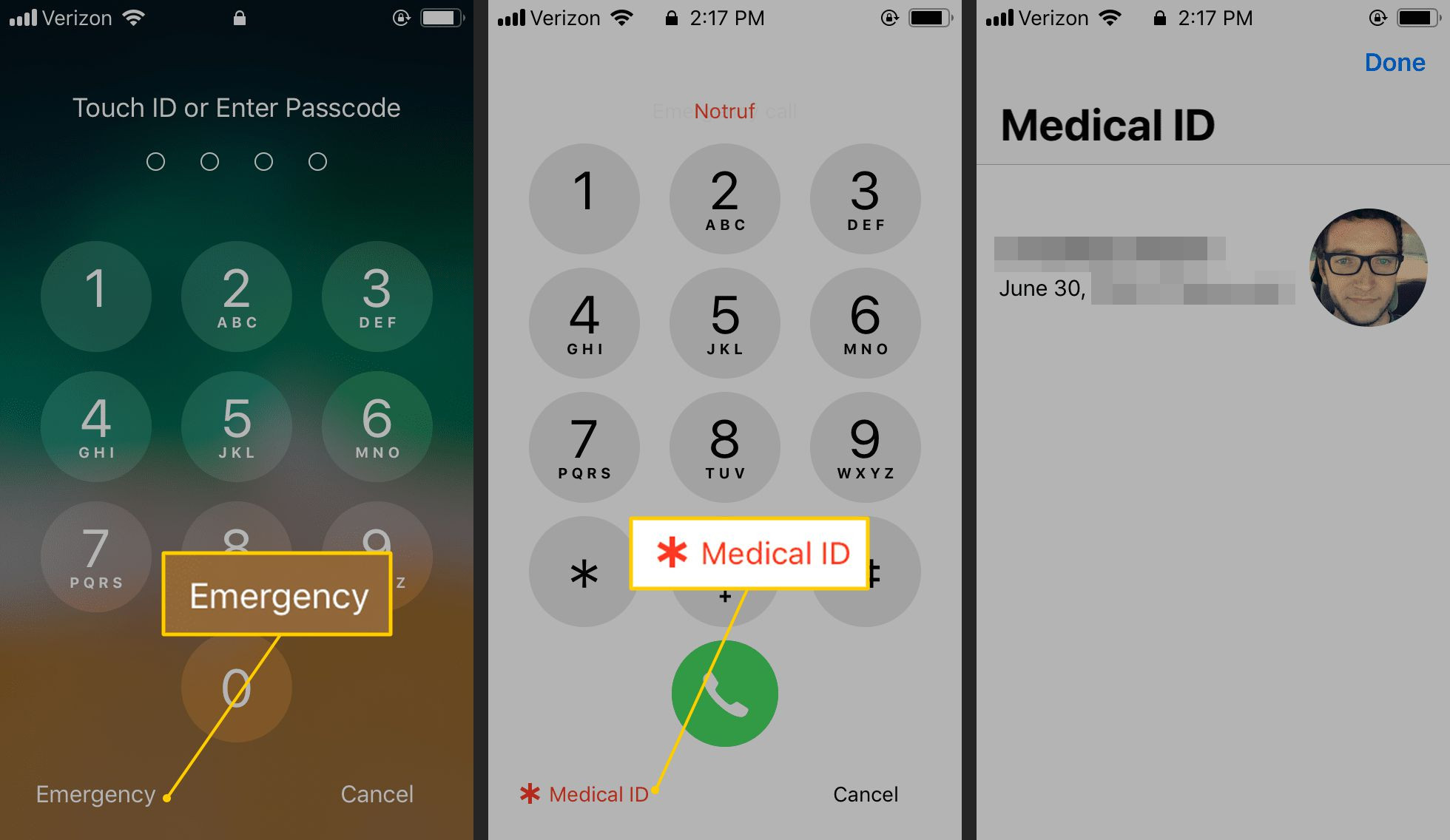 Emergency Medical Card Application form Lovely How to Set Up and View An iPhone Medical Id